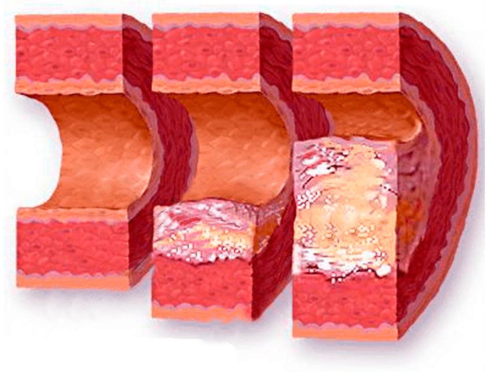 Как вывести холестериновые бляшки народными средствами