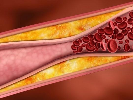 Схема кровотоку